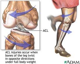 Injured Knee KreedOn