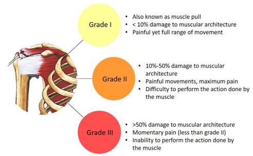 Muscular Pain Treatment KreedOn