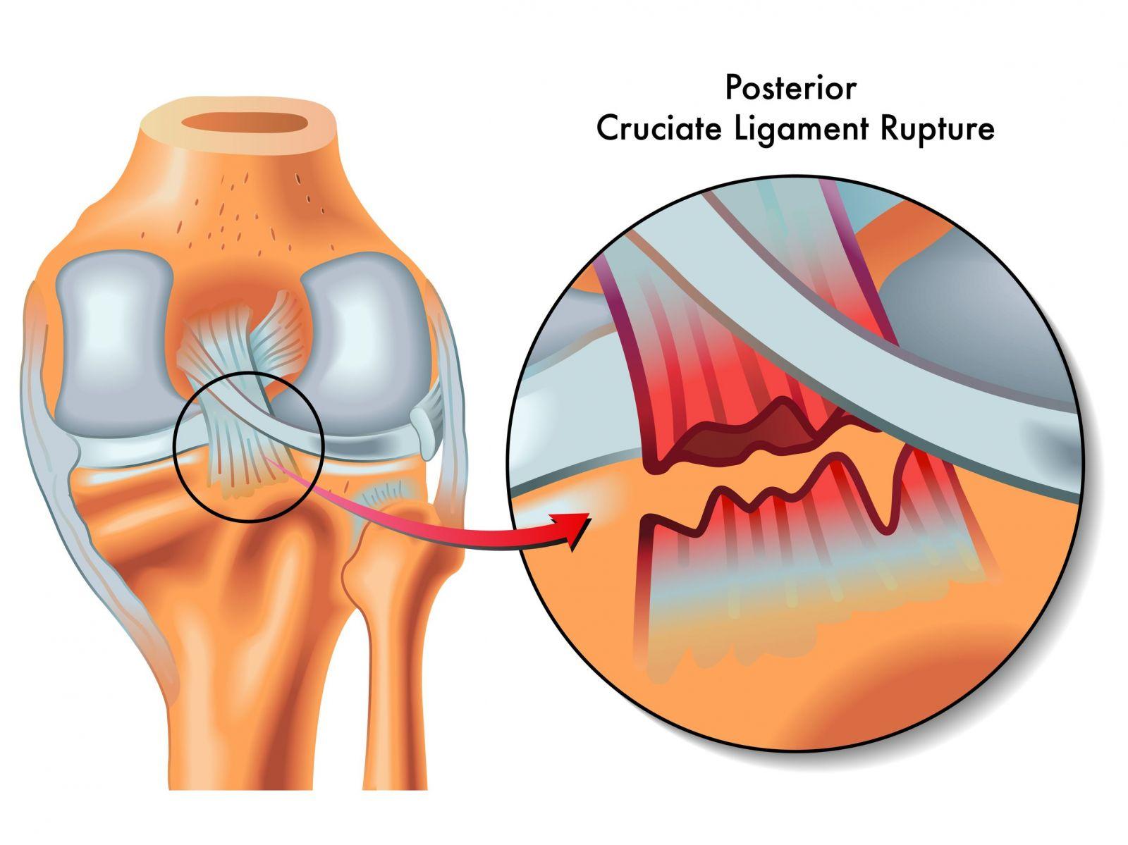 Knee Posterior Ligament Tear KreedOn