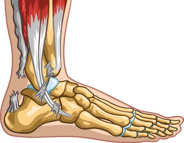 Achilles tendon rupture KreedOn