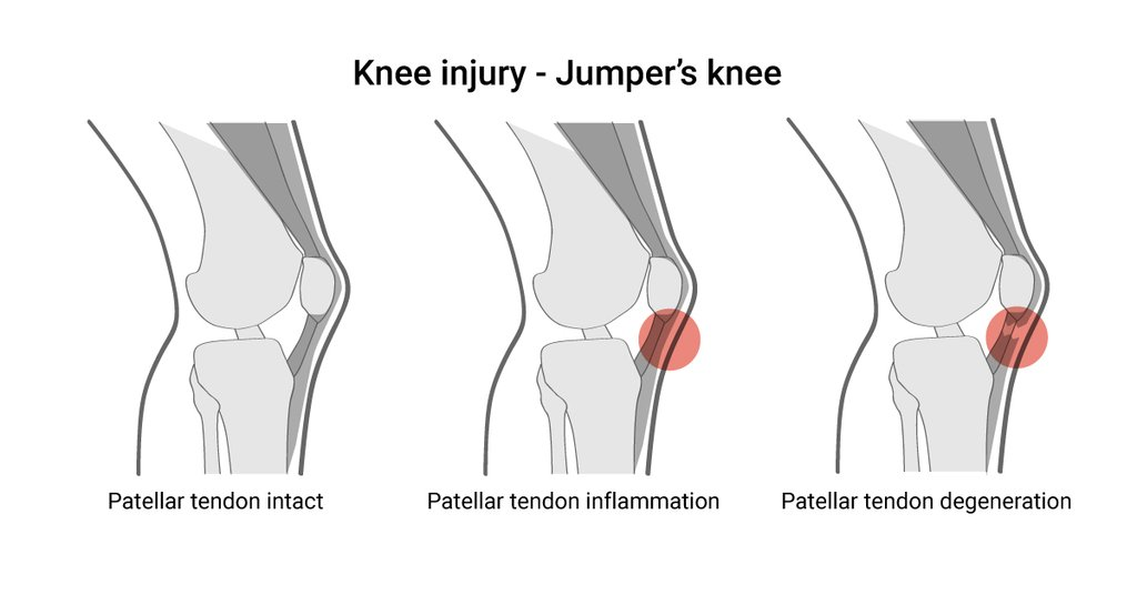 Knee Injury KreedOn