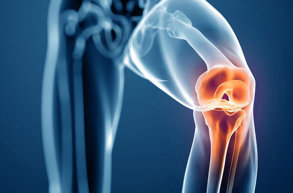 Knee Replacement KreedOn physical therapy